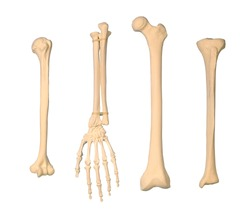 orthopedics hand arm