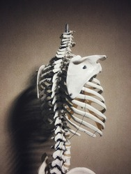 Osteoporosis is a bone thinning disease caused by loss of bone mass,