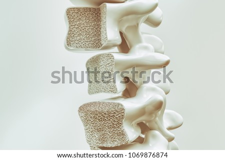 Osteoporosis on the spine - 3d rendering Stockfoto ©