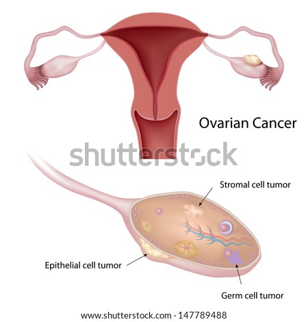 ovarian cyst and pain