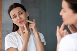 Over shoulder view upset female face reflected in mirror, woman touch face squeezes pimple caused by hormonal imbalance changes, stress or diet. Skin problem, jawline acne or new mole appears concept