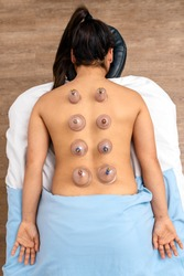 Overhead view of unrecognized woman receiving cupping treatment on her back while lying on stretcher.