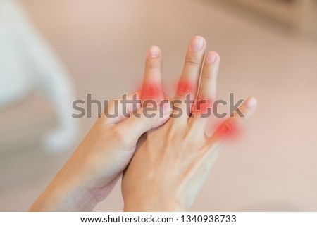 Overuse hand problems. Woman's hand with red spot o fingers as suffer from Carpal tunnel syndrome. The symptoms of tingling, numbness, weakness, or pain of the fingers and wrist.  #1340938733