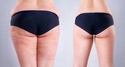 Overweight woman with fat legs and buttocks, before after weight loss concept, obesity female body on gray background