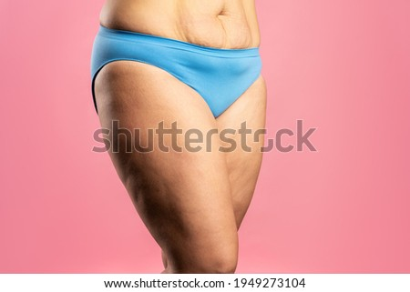 Overweight woman with fat thighs and cellulite, obesity female legs on pink background ストックフォト ©