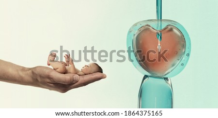 Ovum with needle and sperm for artificial insemination or in vitro fertilization and human baby on palm of hand. Concept of artificial insemination or fertility treatment.  Stock photo ©