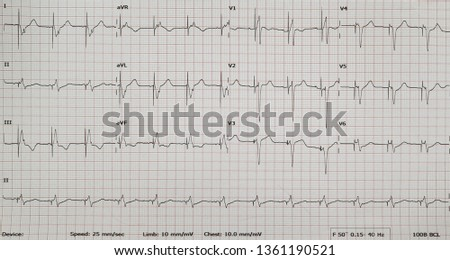 Pacing ECG. A pace V pace. Cardiac resynchronize therapy (CRT).