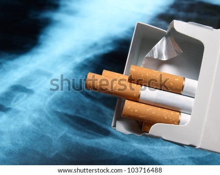 Packs of cigarettes with lung x-ray image in the background.