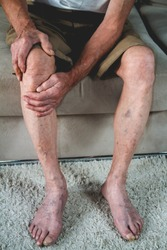 Pain in the legs and knees of an elderly senior. An old man massages his knees due to severe pain from arthritis and varicose veins