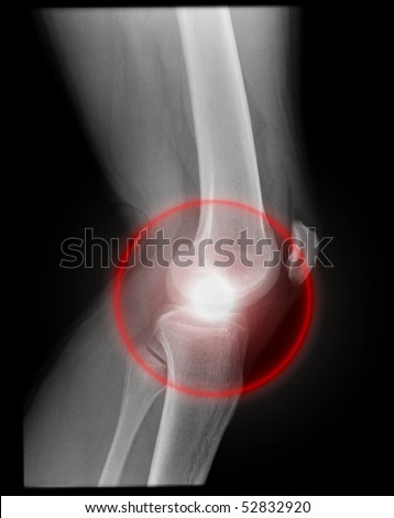 pain inside the knee joint, isolated on black background with red illumination