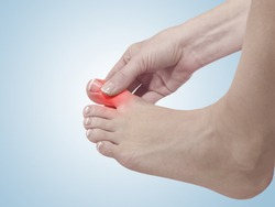Painful and inflamed gout on his foot around the big toe area.