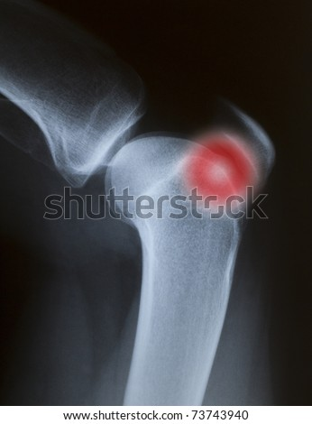 painful closeup X-ray of a knee