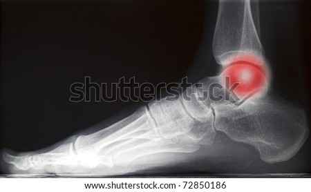 painful human right foot ankle xray picture (internal side)