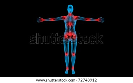 painful joints x-ray body human