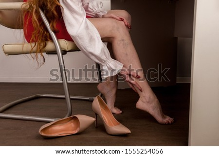 Painful varicose and spider veins on female legs. Woman massaging tired leg in office