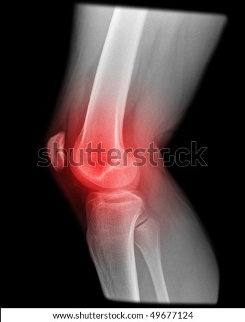 painfull knee joint catched on x-ray isolated on black background
