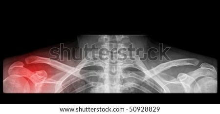 painfull shoulder surgery on x-ray with red illumination