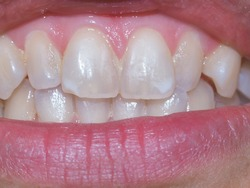 Pale yellow front teeth in macro view with a little bit of plaque on the gum margin