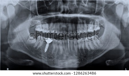 Panoramic black and white image dental x-ray of adult with single dental implant. Roentgen teeth upper and lower jaw. Negative shot of the digital picture