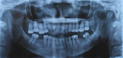 Panoramic dental and mandible x-ray image