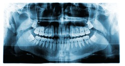 Panoramic dental tooth X-ray of a 17 year old teenage male