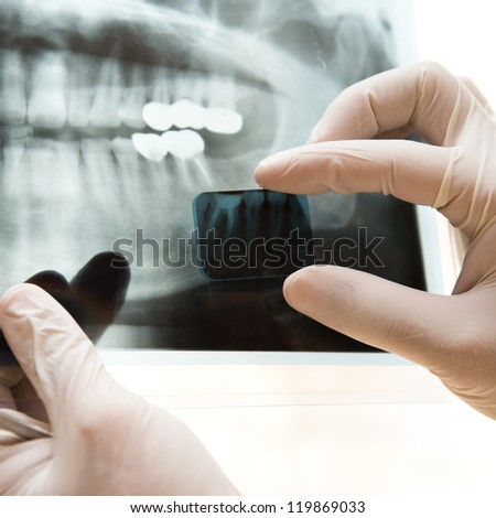 Panoramic dental X-Ray in hand. - stock photo