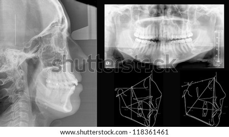 Panoramic dental X-Ray study