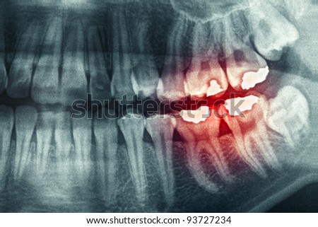 Panoramic dental X-Ray with red painful area