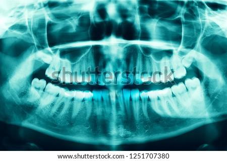 Panoramic image of teeth. Woman x-ray of the teeth wisdom teeth horizontal pozition problem dentistry medicine. #1251707380