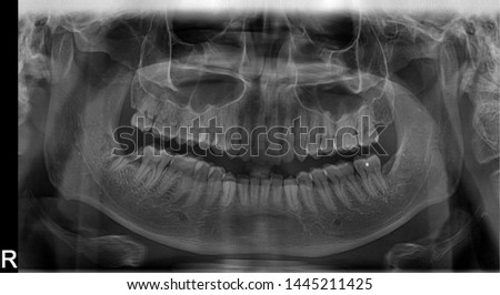 Panoramic radiograph showing Lingual nerve damage due to wisdom tooth extraction/surgery. Results in permanent damages including constant numbness, sharp pains and lost of taste function on tongue #1445211425