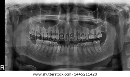 Panoramic radiograph showing Lingual nerve damage due to wisdom tooth extraction/surgery. Results in permanent damages including constant numbness, sharp pains and lost of taste function on tongue #1445211428