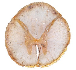 Panoramic view of a cross-sectioned dorsal spinal cord. The central grey matter shows very thin dorsal and ventral horns and is surrounded by the white matter. Silver stain.
