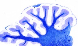 Panoramic view of a sagittal section of a rat cerebellum stained with Luxol fast blue counterstained wih cresyl violet. Myelinated fibers of the white matter appear stained in blue color.