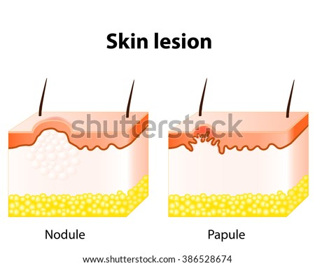 diagram of inside of the lungs diagram of papules papule and nodule. skin lesion. stock photo 386528674 ...
