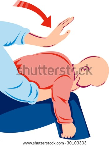 Parent giving Heimlich maneuver on infant