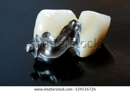Part of a skeletal prosthesis that replaces missing teeth through special clamping systems and it can be removed by the patient - part of a series.