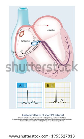 Part of the short PR interval ECG is the enhanced conduction of atrioventricular node, and part is the accessory pathway formed by atrium and the lower part of atrioventricular node and His bundle. Photo stock ©