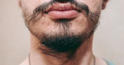 Patchy beard on a man's face