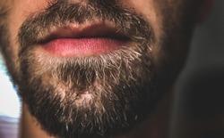 Patchy Facial hair beard with pinkish lips