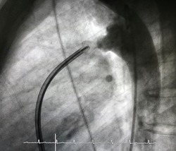 patent ductus arteriosus (PDA) in adult,  which is congenital heart disease, already closed by deployed PDA closure device via endovascular procedure