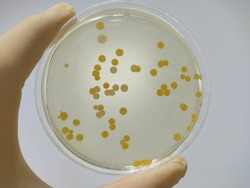 Pathogenic microbial bacteria culture results