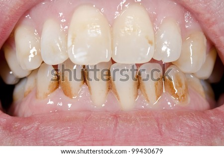 patient before prophylactic treatment, dirty brown teeth