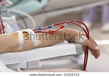 patient lying down during dialysis session in hospital