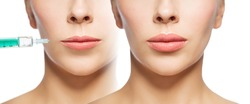 people, cosmetology, plastic surgery and beauty concept - beautiful young woman face before and after lips augmentation injection over white background
