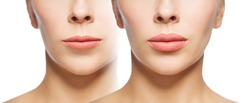 people, cosmetology, plastic surgery and beauty concept - beautiful young woman face woman before and after lips augmentation over white background