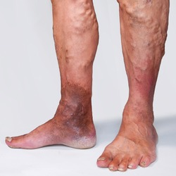 People suffering from varicose veins often come to the phlebologists office, too late - at the moment when visible signs have already appeared on their legs: swelling, swollen veins,