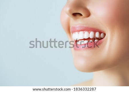 Perfect healthy teeth smile of a young woman. Teeth whitening. Dental clinic patient. Image symbolizes oral care dentistry, stomatology. Foto stock ©