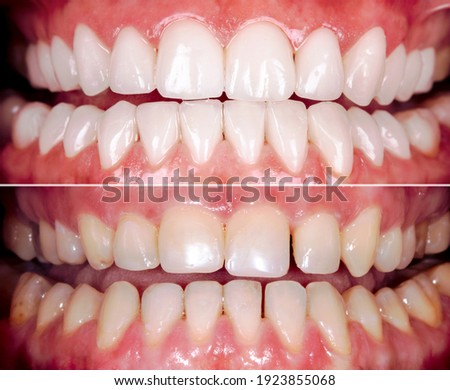 Perfect smile before and after bleaching procedure whitening of zircon arch ceramic prothesis Implants crowns. Dental restoration treatment clinic patient. Result of oral surgery dentistry, Сток-фото ©