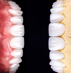 Perfect smile before and after veneers bleach of zircon arch ceramic prothesis Implants crowns. Dental restoration treatment clinic patient. Result of oral surgery procedure whitening dentistry
