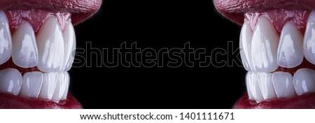 perfect white smile with press ceramic veneers